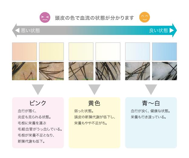 頭皮の色で血流=育毛環境をチェック 図
